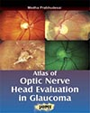 Atlas of Optic Nervehead  Analysis in Glaucoma Book Cover